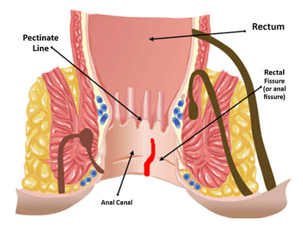 Method of anal fissure treatment